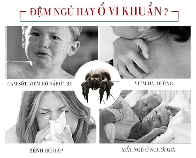 Nguyên nhân gây ngứa ngáy cần thay ga giường nệm thường xuyên